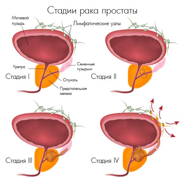 Рак предстательной железы на разных стадиях