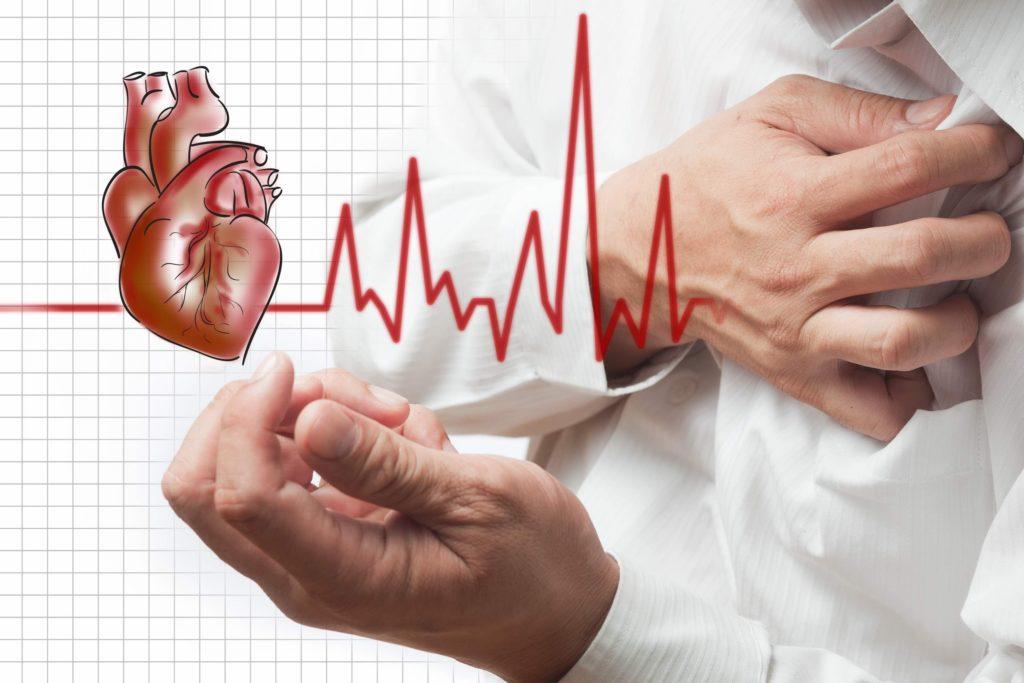 нарушения сердечного ритма