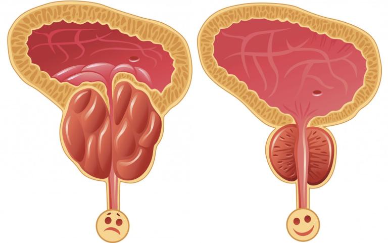 Здоровая и воспаленная простата