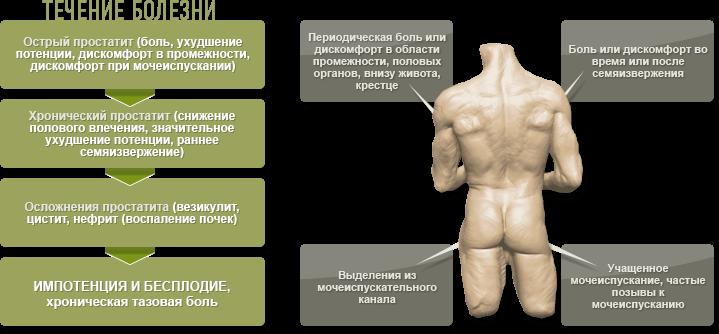 Воспаление предстательной железы у мужчин