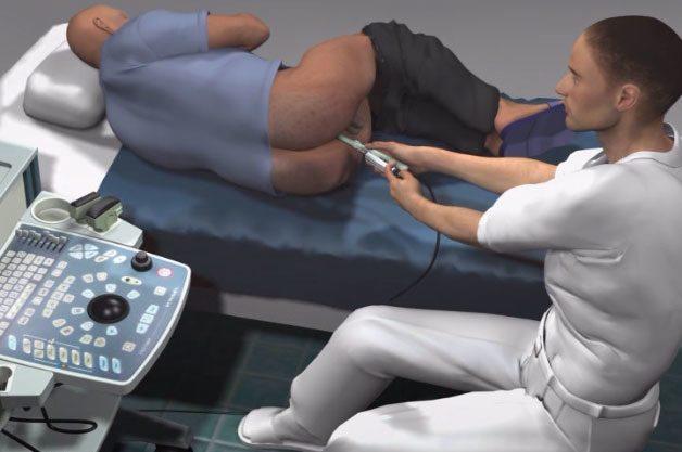 Как делают ТРУЗИ предстательной железы?